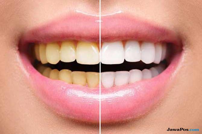 8 Cara Instan Dan Alami Buat Gigi Lebih Putih