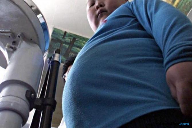 Ayo Kontrol Berat Badan! Jangan Sampai Obesitas Jadi Pembunuh
