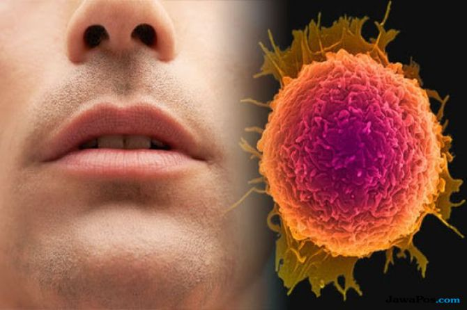 Bahaya Kanker Mulut Renggut Nyawa Kurang dari 3 Tahun