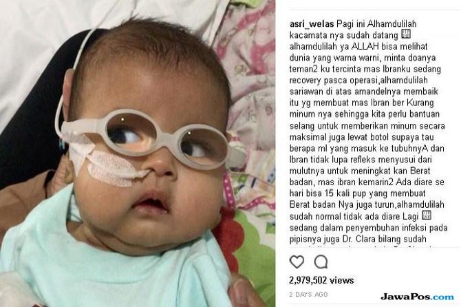 Curhat Asri Welas yang Bayinya Terkena Katarak