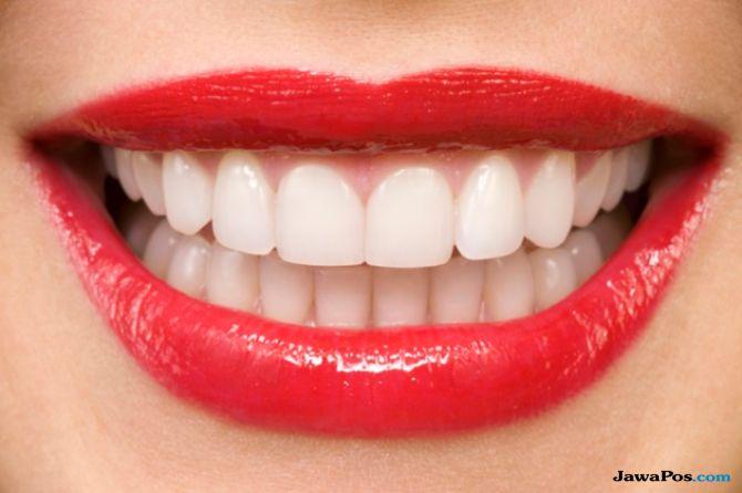 Ingin Gigi Putih dengan Veneer atau Whitening? Kenali Dulu Bedanya