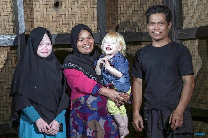 Melihat Kehidupan Kampung Albino atau Sunda Walanda di Garut (1)