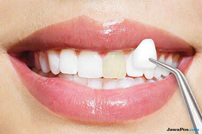 Tertarik Veneer Gigi, Ini Sejumlah Hal yang Perlu Diketahui Dahulu