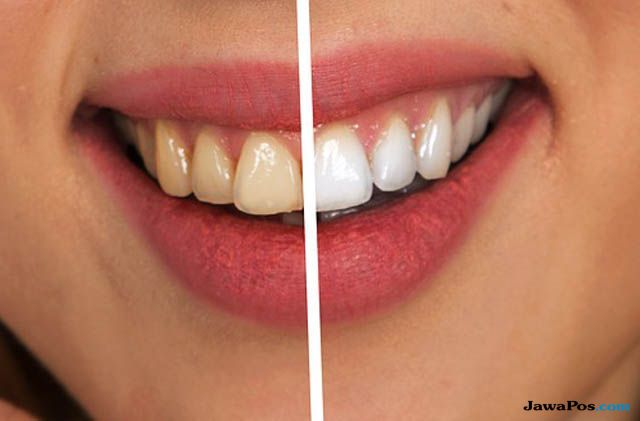Tertarik Melakukan Veneer Gigi, Ini Syaratnya Yang Perlu Diketahui